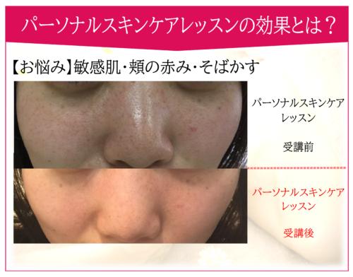 シミ・そばかす・敏感肌・頬の赤み